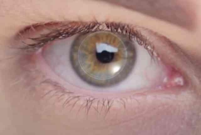 Cấy ghép thành công giác mạc  nhân tạo mang lại ánh sáng cho người mù